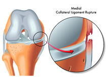 Medial collateral ligament rupture. Medical Illustration of medial collateral ligament rupture Royalty Free Stock Photos