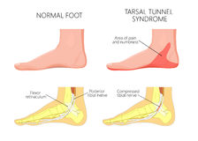 Medial kostki injury_Tarsal tunelowy syndrom Obraz Stock