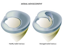 Medial meniscopathy Stock Photo
