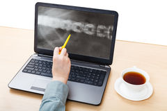 Medic analyzes X-ray picture of spine on laptop Royalty Free Stock Photography