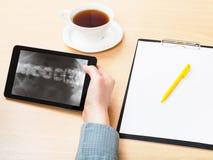 Medic analyzes vertebral column on tablet pc Royalty Free Stock Photo