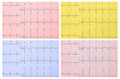 Medical background. ECG. 4 types of toning Stock Image