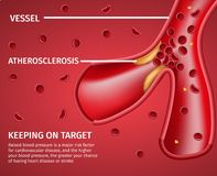 Atherosclerotic Vessels Medical Disease Banner royalty free illustration