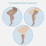 Medical compression hosiery Royalty Free Stock Image