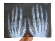 Medical copy of a broken hand Stock Photos