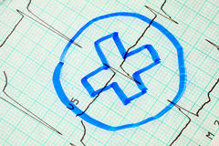 Medical cross on electrocardiogram Stock Photo