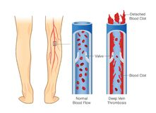 Medical Diagram of Deep Vein Thrombosis at leg area. Illustration about abnormally of blood floow royalty free illustration