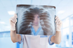 Medical doctor looking through x-ray picture. Of lungs in hospital Stock Photography