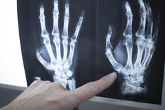 Medical doctor pointing at radiograph x-ray image stock images
