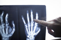 Medical doctor pointing at radiograph x-ray image Royalty Free Stock Images