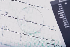 Medical ECG and lens Royalty Free Stock Images