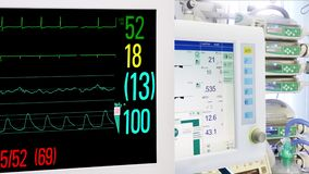 Medical Equipment in ICU. Cardiac and Vital Sign Monitoring. Medical Equipment in ICU. Cardiac and Vital Sign Monitoring, Mechanical Lung ventilation stock video footage