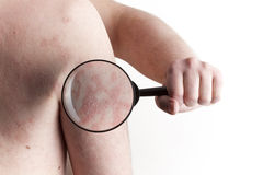 Medical Exam - Psoriasis Royalty Free Stock Photo