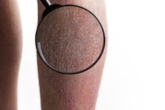 Medical Exam - Psoriasis on legs. Medical exam on psoriasis on the legs Royalty Free Stock Image