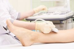 Medical examination. Patients leg. Ultrasonography. Blurred light background. Doctors hands stock photo