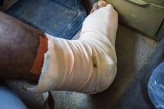 Medical expenses for broken leg. In car Stock Photo