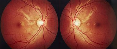Medical fundus photo of macula. Medical fundus photo showing left and right healthy retina, optic nerve, and macula Royalty Free Stock Photo