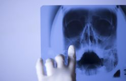 Medical xray face scan. Medical hospital x-ray face skull mouth, teeth, nose and eyes scan stock photography