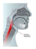 Pharyngitis. Medical illustration of the effects of pharyngitis Royalty Free Stock Photos
