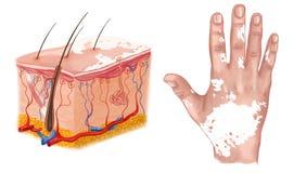 Medical Illustration of the effects of vitiligo Royalty Free Stock Photos