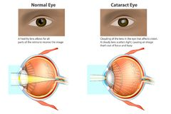 Medical illustration of a normal eye and an eye with a cataract,. Ð¡ataract is a clouding of the lens. Medical illustration of a normal eye and an eye with a royalty free illustration