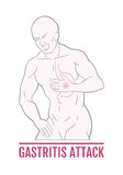 Medical illustration of stomach pain in humans. an attack of gastritis. scheme for textbooks Royalty Free Stock Images