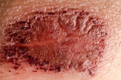 Medical incrustation scab. Skin of patient Stock Photo