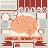 Medical infographics with brain and text Stock Image