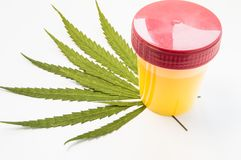 Medical laboratory container with urine sample rests on green leaves of marijuana weed. Photo concept for visualization determin. E presence of cannabis in urine Stock Photo