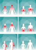Medical man & woman, human body pain Royalty Free Stock Images