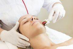 Medical micro needle therapy with a modern medical instrument derma roller. Stock Image