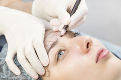 Medical micro needle therapy with a modern medical instrument derma roller. Stock Photography