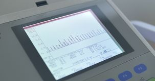Medical monitor, pulse of heart stock video footage
