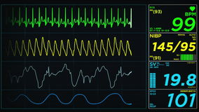 Medical monitor Screen Heart Attack Loop stock video footage