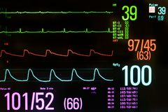 Free Medical Monitor Showing Bradycardia And Hypotension Stock Photo - 123272700