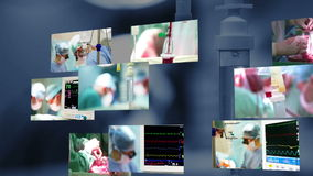 Medical montage. Surgery. Medical montage. Cardiac Surgery in Operation Room