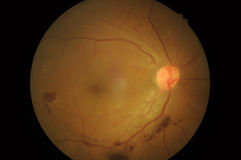Medical photo of retinal pathology Disorders of sc Royalty Free Stock Photo