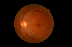 Medical photo tractional (eye screen) diabetes retinal screening Stock Images