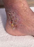 Medical picture: Infection cellulitis. On the skin of an ankle caused by phlebitis and blood clots in the vein stock images