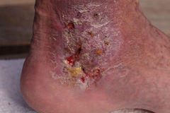 Medical picture: Infection cellulitis. On the skin of an ankle caused by phlebitis and blood clots in the vein stock photo
