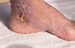 Medical picture: Infection cellulitis. On the skin of an ankle caused by phlebitis and blood clots in the vein royalty free stock images