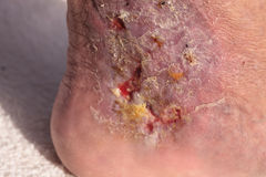 Medical picture: Infection cellulitis. On the skin of an ankle caused by phlebitis and blood clots in the vein royalty free stock image