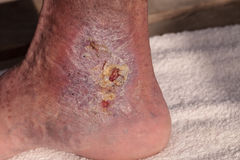 Medical picture: Infection cellulitis. On the skin of an ankle caused by phlebitis and blood clots in the vein royalty free stock photo