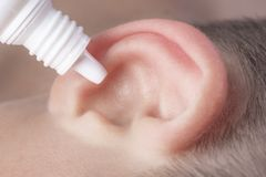 Medical pipette with a drop of medication over the patient`s ear. Ear diseases royalty free stock images