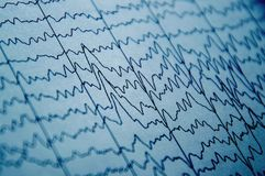 EEG wave in human brain, brain wave patterns on electroencephalogram, problems in the electrical activity of the brain royalty free stock images