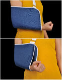 Medical Support Hand Sling Royalty Free Stock Photography
