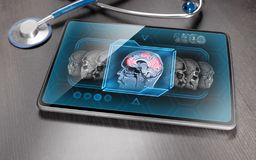 Brain activity scan. Medical tablet on gray wooden table displaying cerebral activity scan royalty free stock photography