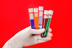 Medical test tubes with fluid sample on red Royalty Free Stock Photography