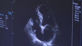 Medical ultrasound scan heart Echocardiogram. Shows  views of valsalva tests on beating heart stock footage