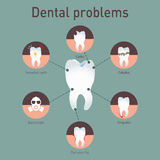 Medical vector infografics Dental problems. Stock Images